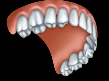 Dentures leven vale dental leven vale dental light alloy dentures solutioingenieria Image collections