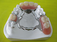 light alloy dentures